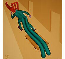 Overcoming Anatomical Irregularity Photographic Print