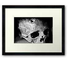 Pain Relief Framed Print