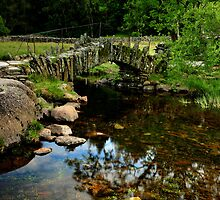 Slaters Bridge by Rachel Slater