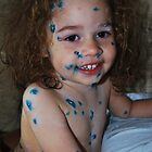 have a happy chicken pox  by Inese