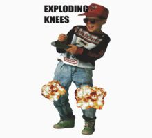 Exploding knees by Julien Menet