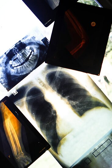X-Rays  by Nina  Matthews Photography