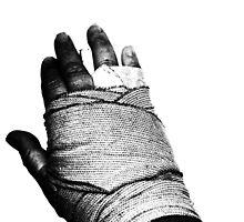 AAAAAAAAHHHHHHHHH ... Broken Hand ... by LESLEY B