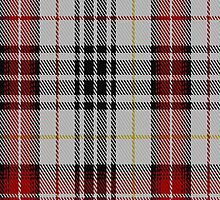 01936 Casey Dress Fashion Tartan Fabric Print Iphone Case by Detnecs2013