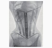 19th Century X-ray of a corset by caldayjd