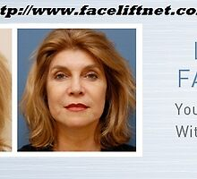 Beverly Hills Facelift Doctor by faceliftnet