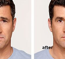 Botox before and after man by KathyWinston