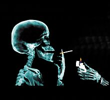 X-Ray Skull Smoking by KidDex