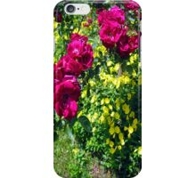 these are the days....... iPhone Case/Skin