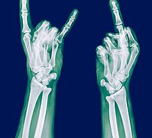 x-ray of a human hand making obscene hand gestures  by PhotoStock-Isra