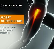 Hip Replacement Surgery Beverly by jointsurgerymd1