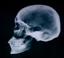 Skull by Samantha Lusher
