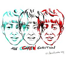 THE ONEW CONDITION by haneulhome