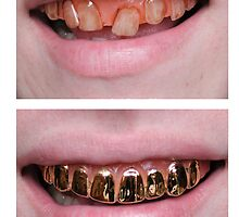 Gold Grills by trillful