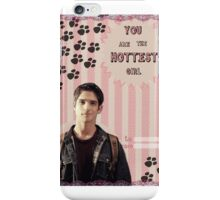 My Teenwolfed Valentine [You are the hottest girl] iPhone Case/Skin