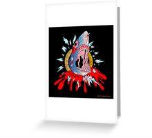 Zombie Shark Greeting Card