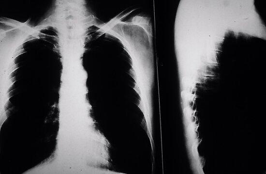 Chest X-ray by oscarcwilliams