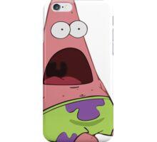 Surprised Patrick (Large) iPhone Case/Skin