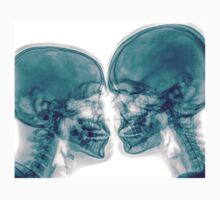 Kissing Couple. Two people kissing under x-ray by PhotoStock-Isra