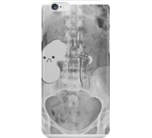 Kidney Transplant Donor iPhone Case/Skin