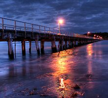 Causeway Nights by Steve Chapple