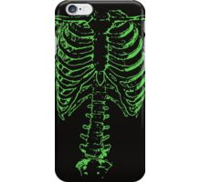 Spinal Tap (Nigel Tufnel) Green Ribcage Skeleton  iPhone Case/Skin