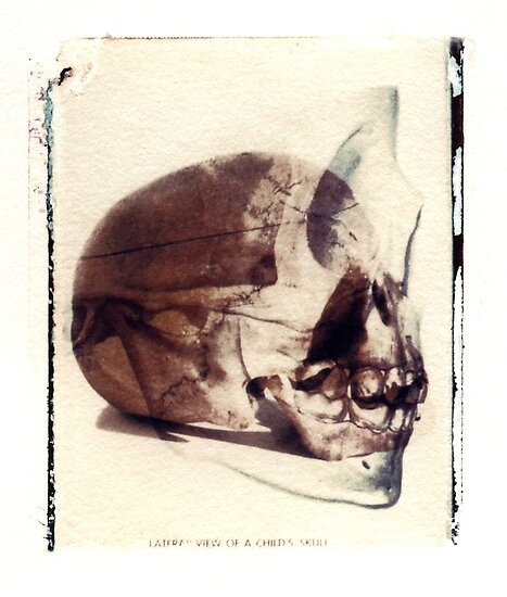 X-Ray Terrestrial No. 3 by Jane Linders