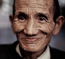 Tortured Tibetan Refugee by watchlooksee