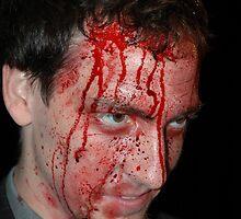 Bloody by Ian McKenzie