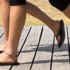 legs on the boardwalk by Anne Scantlebury