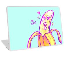 Bara Banana Laptop Skin