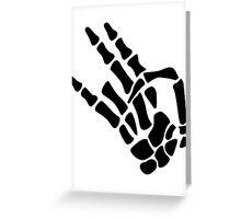 Bone Shocker Greeting Card