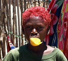 Young Magalasy Boy with Red Hair Eating a Mango by milefo