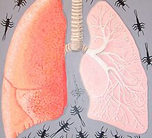 lungs and bugs by suzi krawczyk