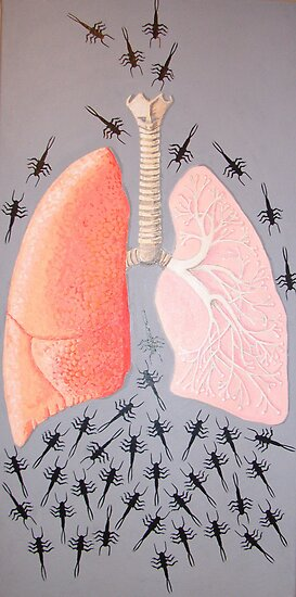 lungs and bugs by suzi krawczyk