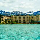 Chateau Lake Louise by Angelo Narciso