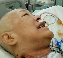 Cancer Surgery (10)、OSAKA JAPAN by yoshiaki nagashima