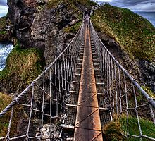 Carrick-A-Rede Rope Bridge by Sam  Parsons
